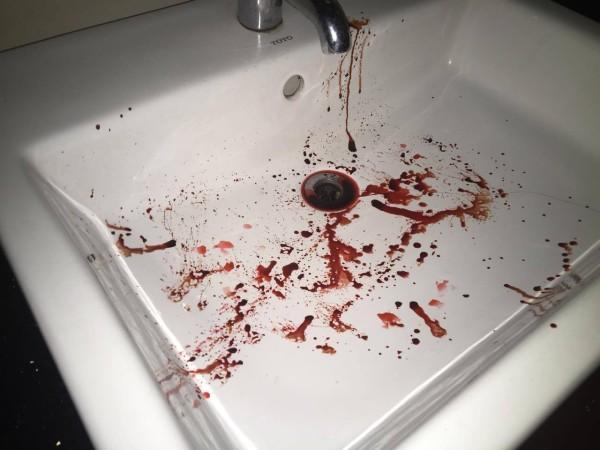 洗面器は凄惨な姿に